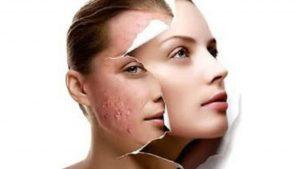 tratamiento acne hormonal